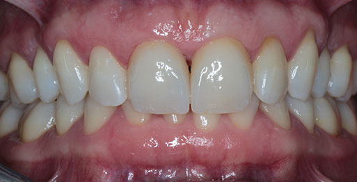 Enlighten & Veneers - After