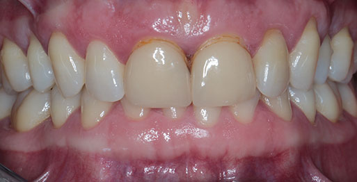Enlighten & Veneers - Before
