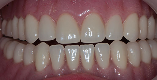 Implant Retained Dentures - After