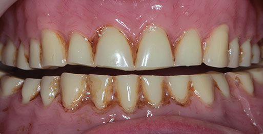 Implant Retained Dentures - Before